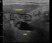 Obstrucción biliar extrahepática en un gato con dilatación del conducto colédoco en su entrada al duodeno debido a una pancreatitis con esteatitis por peritonitis focal